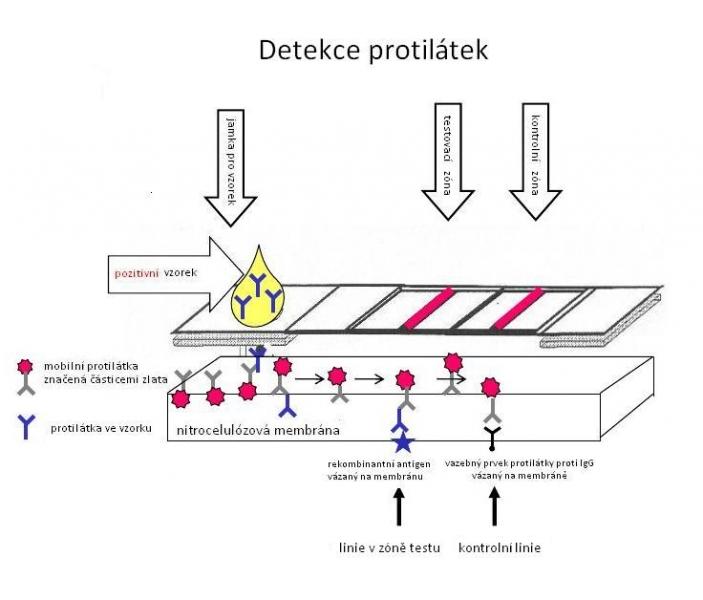 Detekce protilátek